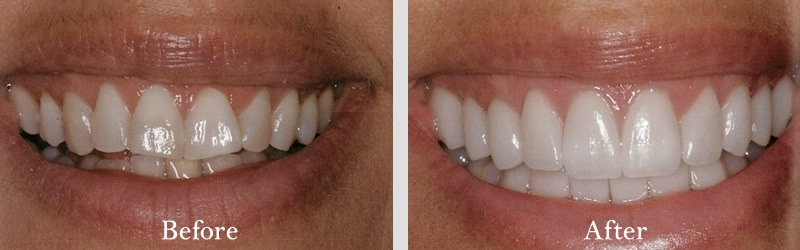 Tissue graft to correct areas of recission and porcelain veneers.