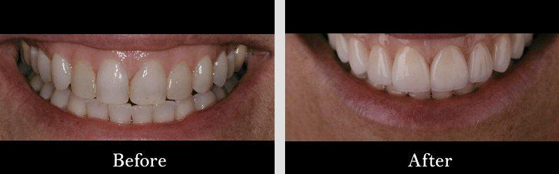 "Porcelain veneers ""instant orthodontics"""