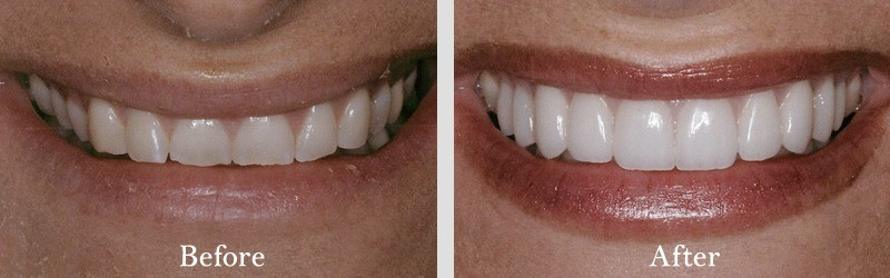 Porcelain veneers to correct worn and chipped surfaces by adding length.
