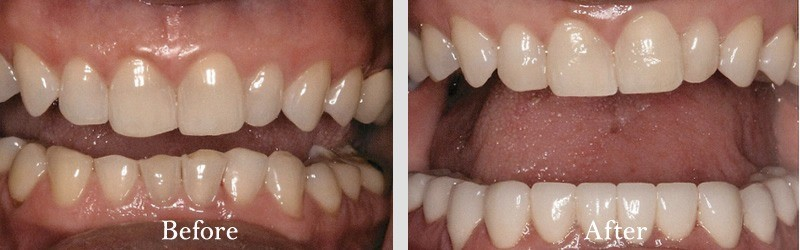 No preparation porcelain veneers to fix chipped and worn surfaces.