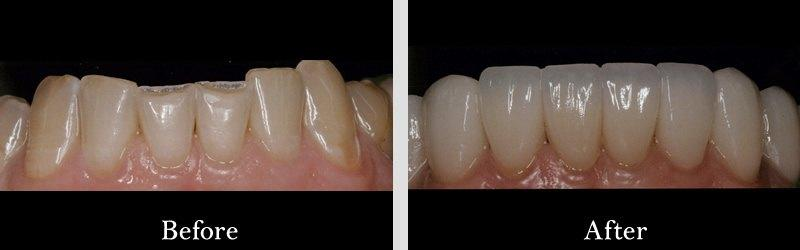 veneers and lower arch to correct worn and chipped.