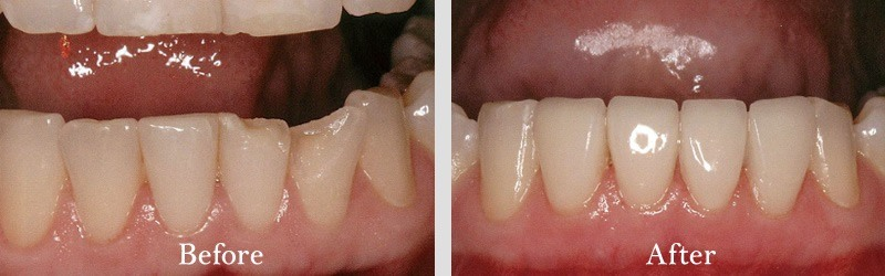 Veneers to fix worn and chipped