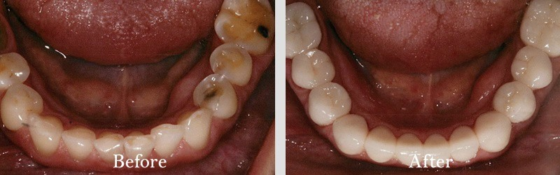 full coverage restorations to restore all lower teeth due to aggressive function and erosive activity