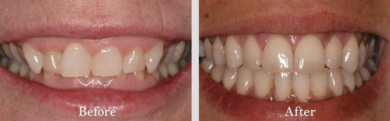 Gum lift by our Periodontist to reduce gummy smile and natural porcelain laminates.