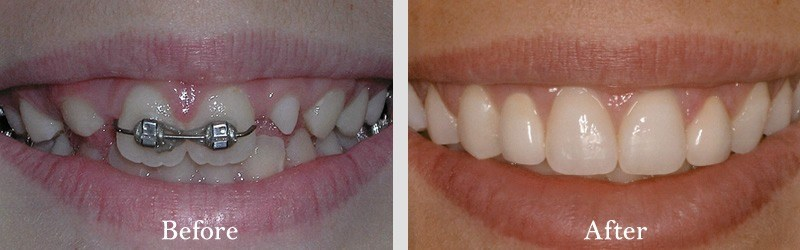 Post orthodontics no preparation veneers on four teeth adjacent to front to increase dimension.