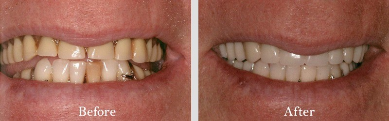 Upper denture and new lower partial on the 6-lower anterior.
