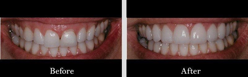 "Porcelain veneers and tissue sculpt performed by our Periodontist, ""gum lift"""
