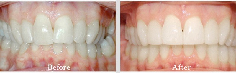 Invisalign to correct crowding.