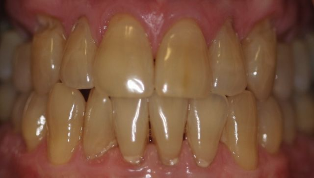 Kor Whitening Before Before & After Gallery