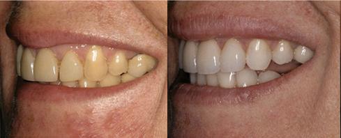 before after elle jordan In House Full Service Dental Laboratory