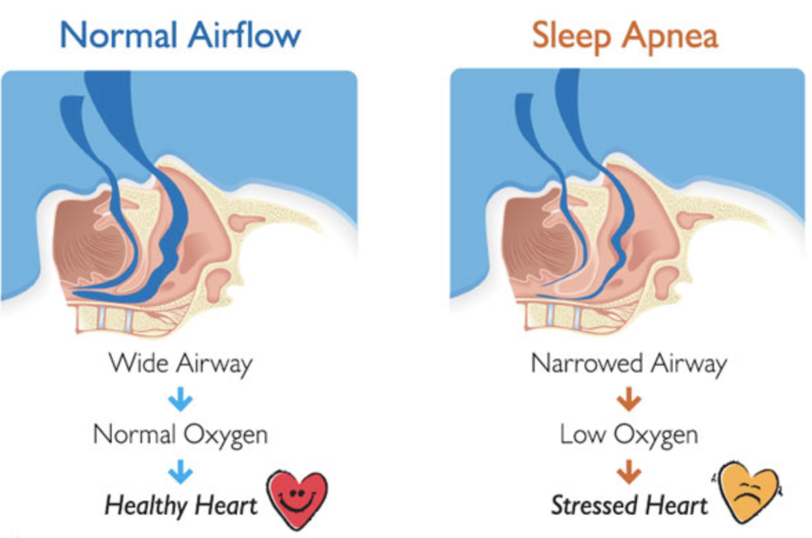 Screen Shot 2018 02 16 at 7.53.36 PM What Is Sleep Apnea? Do You Have It? Should You Do Something About It?