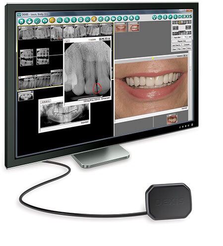 digital technology dental